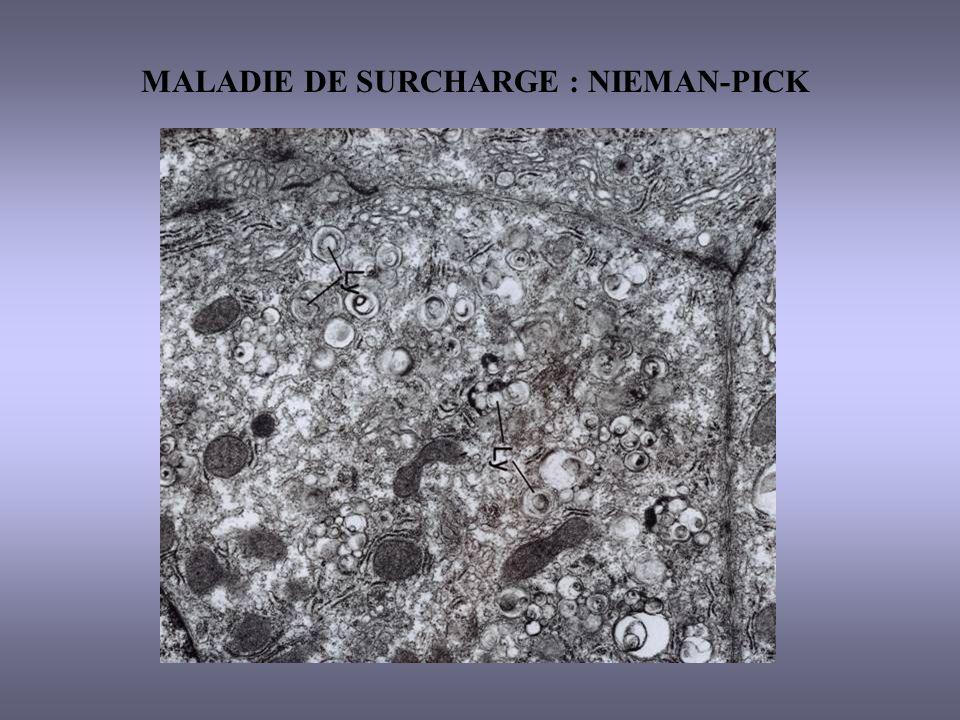 MALADIE DE SURCHARGE : NIEMAN-PICK