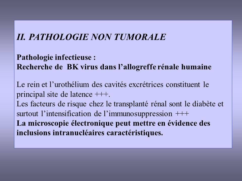 II. PATHOLOGIE NON TUMORALE Pathologie infectieuse : Recherche de BK virus dans lallogreffe rénale humaine Le rein et lurothélium des cavités excrétri