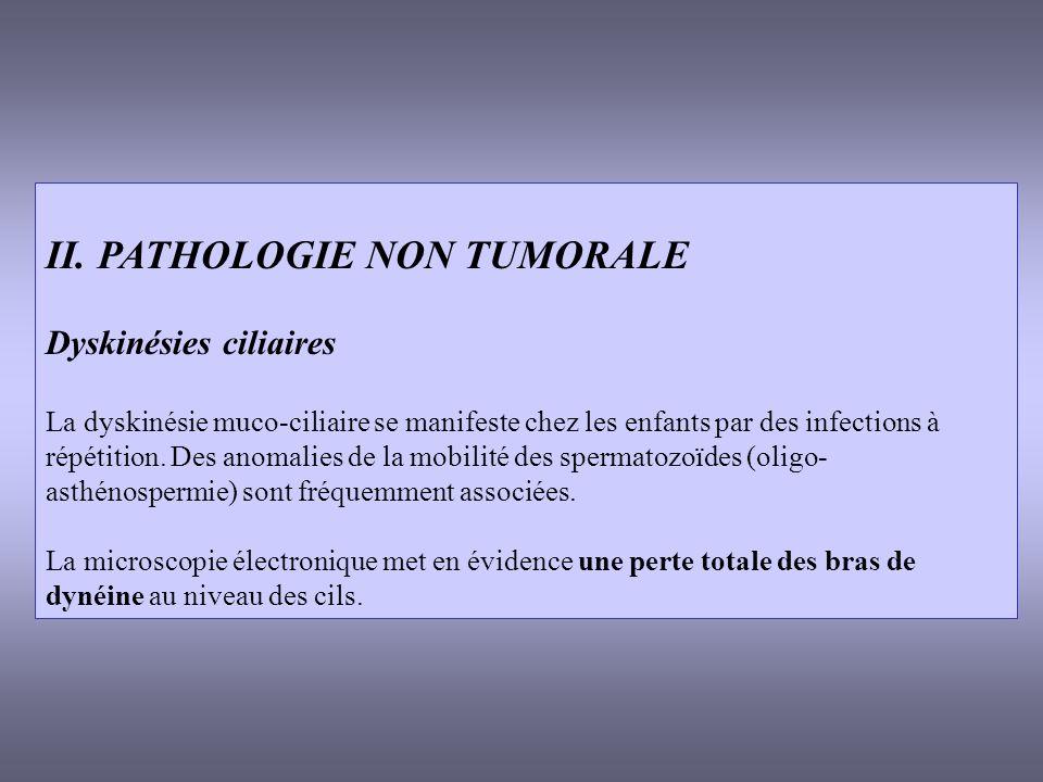II. PATHOLOGIE NON TUMORALE Dyskinésies ciliaires La dyskinésie muco-ciliaire se manifeste chez les enfants par des infections à répétition. Des anoma