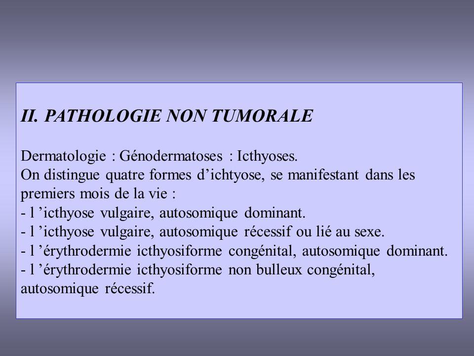 II. PATHOLOGIE NON TUMORALE Dermatologie : Génodermatoses : Icthyoses. On distingue quatre formes dichtyose, se manifestant dans les premiers mois de