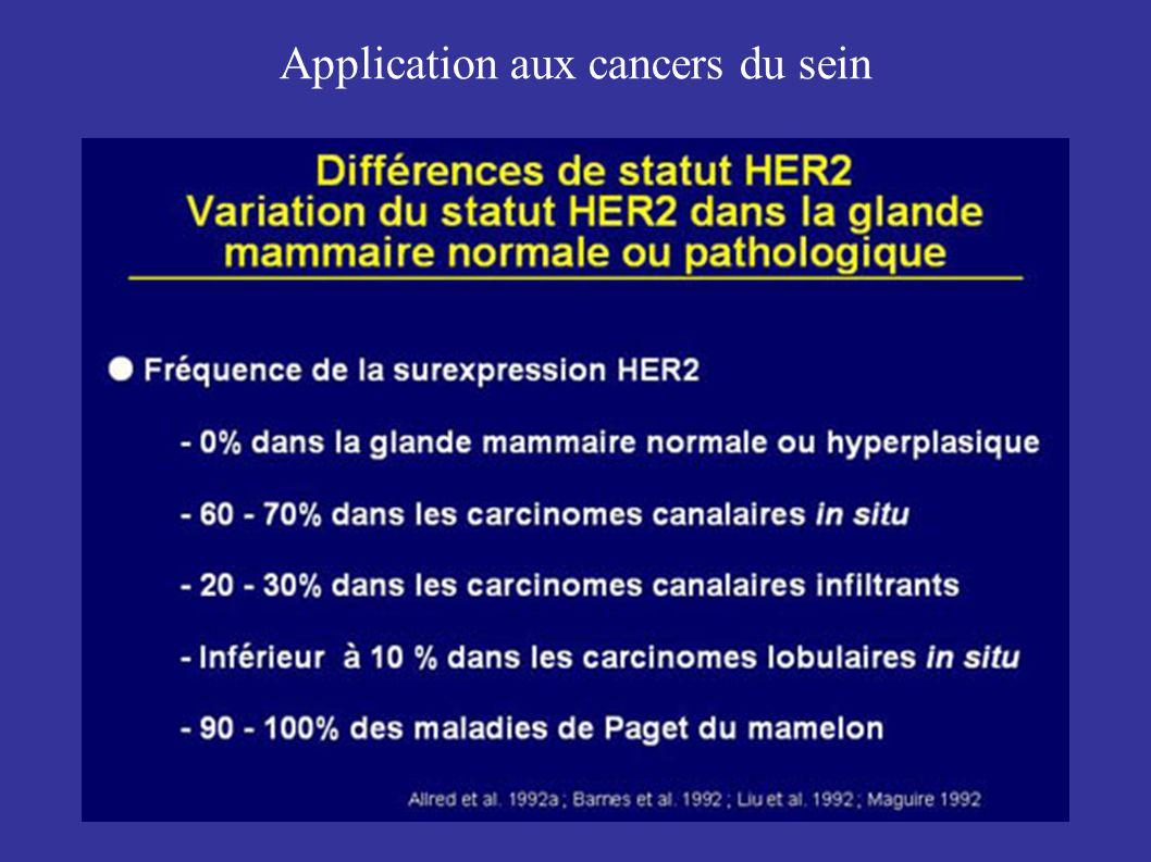 Application aux cancers du sein