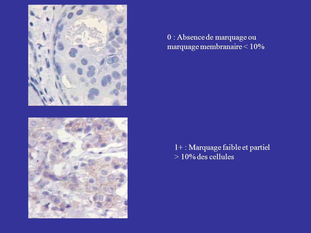 0 : Absence de marquage ou marquage membranaire < 10% 1+ : Marquage faible et partiel > 10% des cellules