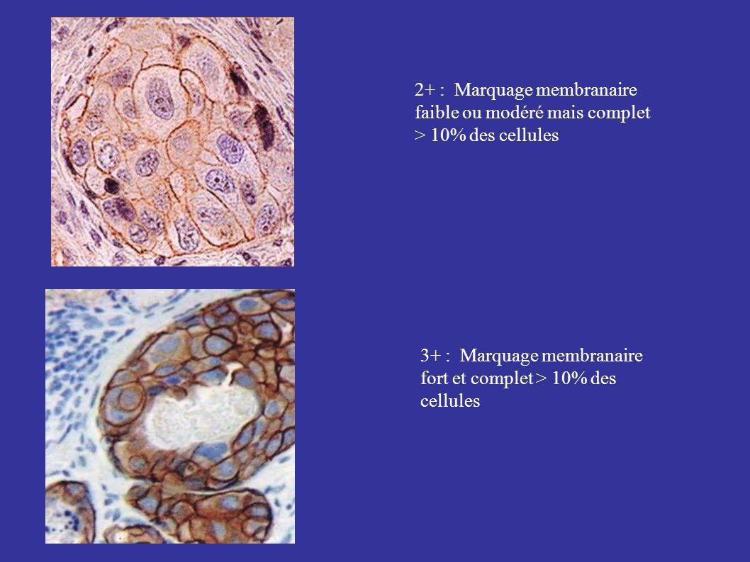 2+ : Marquage membranaire faible ou modéré mais complet > 10% des cellules 3+ : Marquage membranaire fort et complet > 10% des cellules