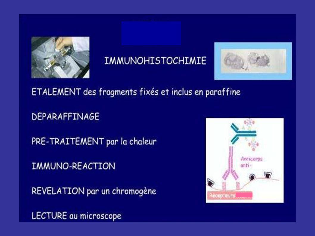 Exemples de CISH Absence damplification Amplification Utiliser un contrôle positif à chaque manip+++ >50% cellules tumorales (Zymed) Repérage au x20 Lecture au x40
