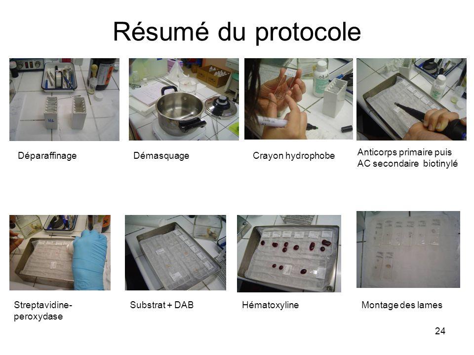 24 Résumé du protocole DéparaffinageDémasquageCrayon hydrophobe Anticorps primaire puis AC secondaire biotinylé Streptavidine- peroxydase Substrat + D