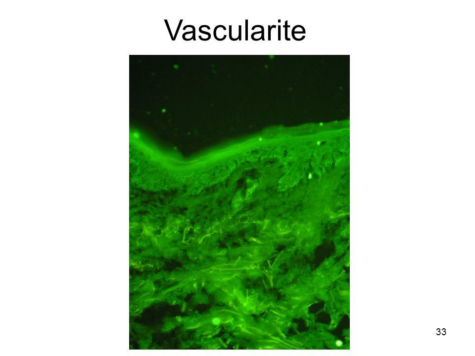 33 Vascularite