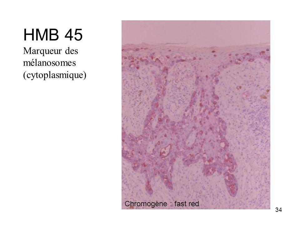 34 HMB 45 Marqueur des mélanosomes (cytoplasmique) Chromogène : fast red