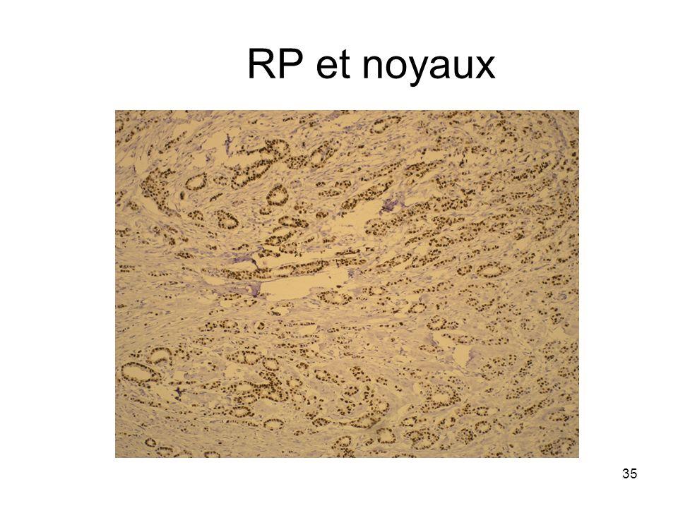 35 RP et noyaux