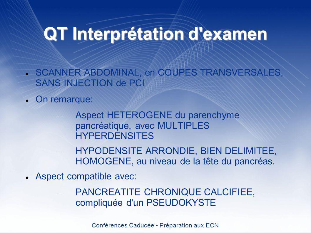 QT Interprétation d'examen SCANNER ABDOMINAL, en COUPES TRANSVERSALES, SANS INJECTION de PCI On remarque: Aspect HETEROGENE du parenchyme pancréatique