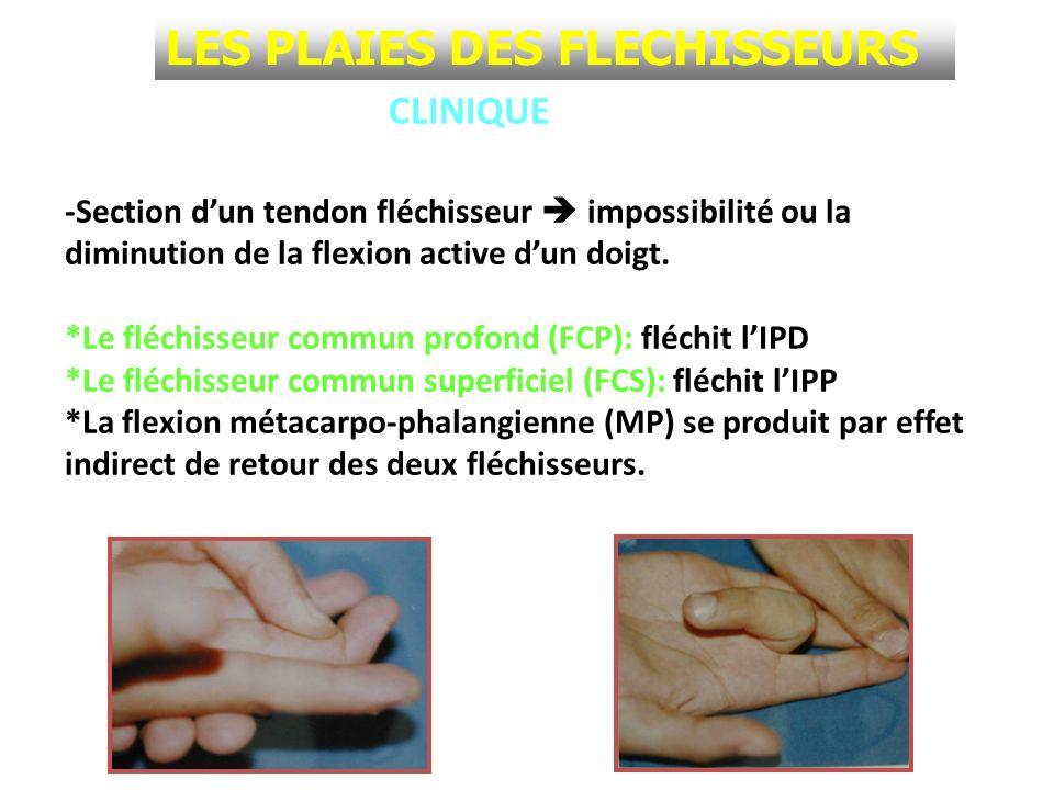 LES PLAIES DES FLECHISSEURS CLINIQUE -Section dun tendon fléchisseur impossibilité ou la diminution de la flexion active dun doigt. *Le fléchisseur co
