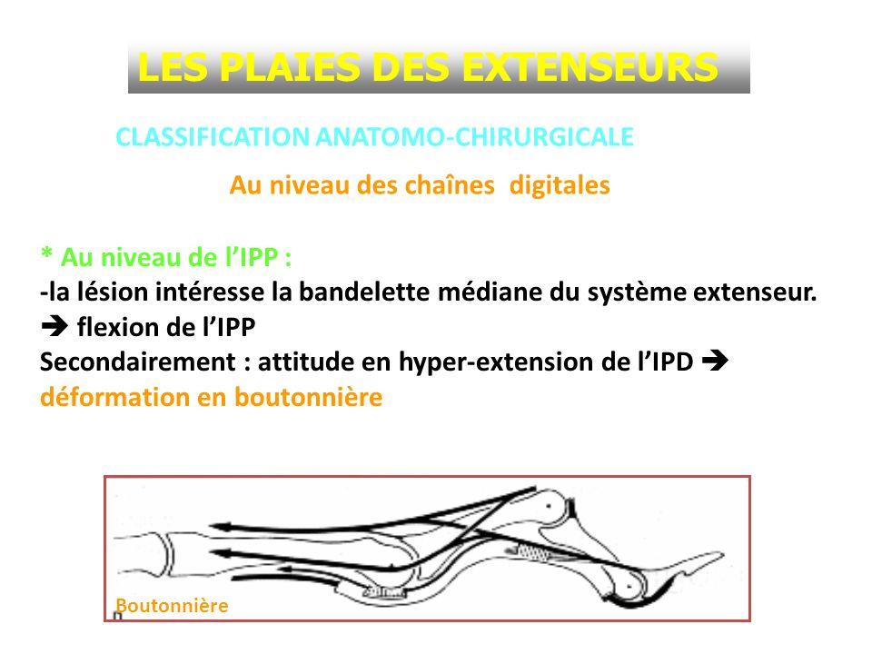 CLASSIFICATION ANATOMO-CHIRURGICALE * Au niveau de lIPP : -la lésion intéresse la bandelette médiane du système extenseur. flexion de lIPP Secondairem