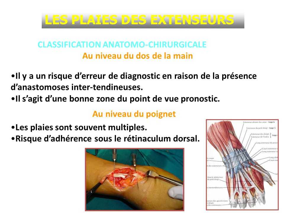 CLASSIFICATION ANATOMO-CHIRURGICALE Il y a un risque derreur de diagnostic en raison de la présence danastomoses inter-tendineuses. Il sagit dune bonn