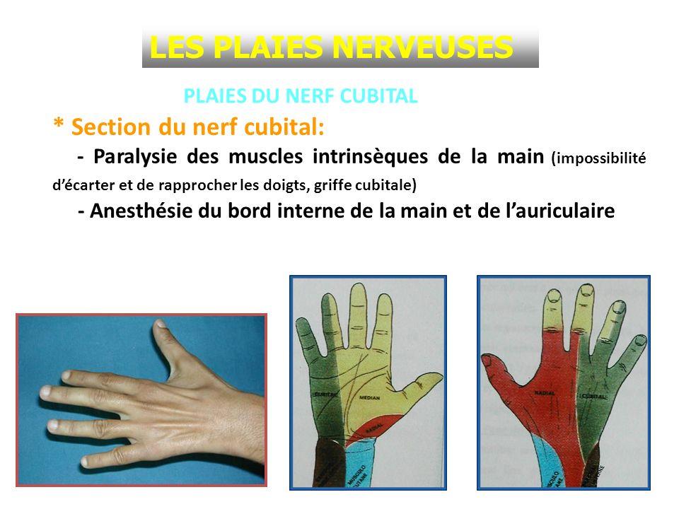 PLAIES DU NERF CUBITAL * Section du nerf cubital: - Paralysie des muscles intrinsèques de la main (impossibilité décarter et de rapprocher les doigts,