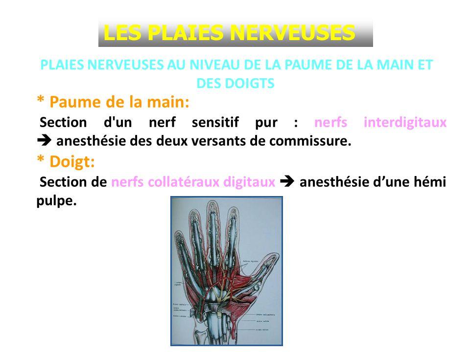 PLAIES NERVEUSES AU NIVEAU DE LA PAUME DE LA MAIN ET DES DOIGTS * Paume de la main: Section d'un nerf sensitif pur : nerfs interdigitaux anesthésie de