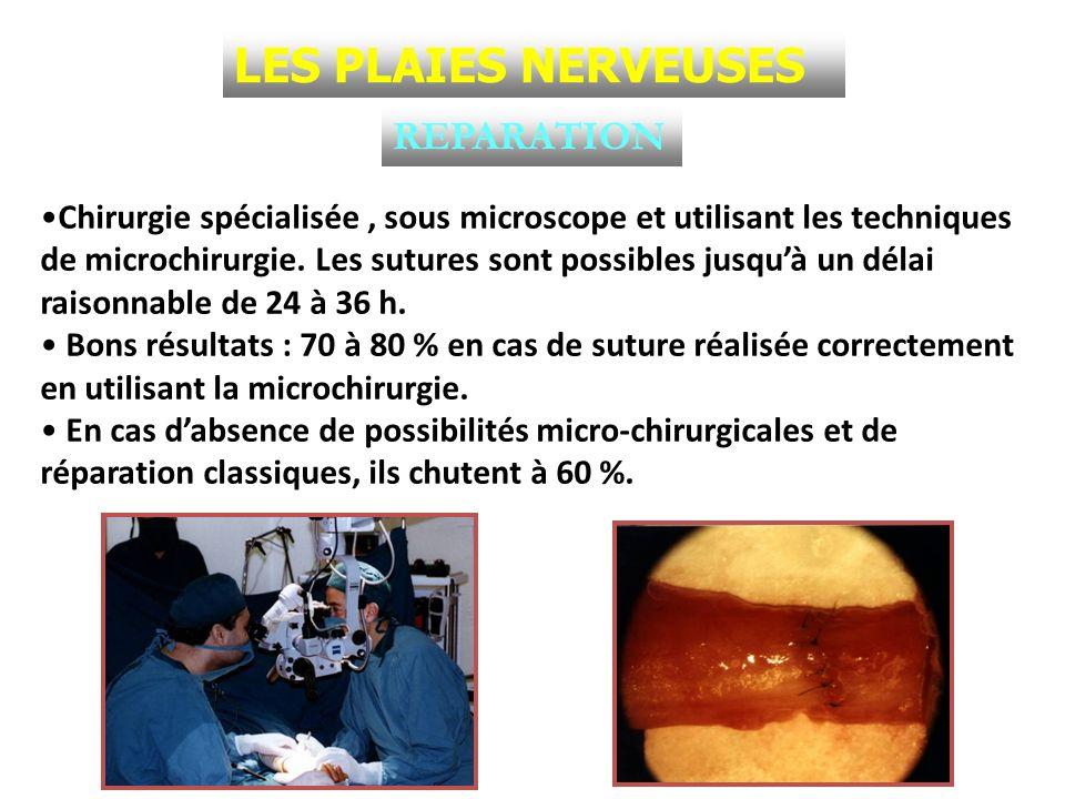 REPARATION Chirurgie spécialisée, sous microscope et utilisant les techniques de microchirurgie. Les sutures sont possibles jusquà un délai raisonnabl