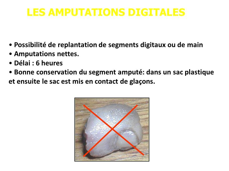 LES AMPUTATIONS DIGITALES Possibilité de replantation de segments digitaux ou de main Amputations nettes. Délai : 6 heures Bonne conservation du segme