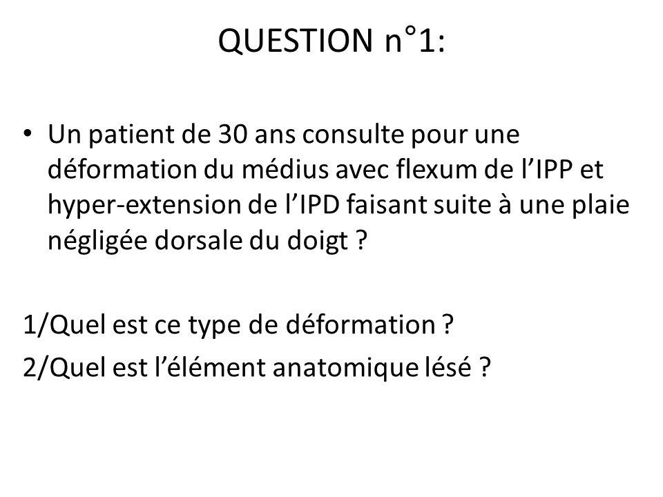 QUESTION n°1: Un patient de 30 ans consulte pour une déformation du médius avec flexum de lIPP et hyper-extension de lIPD faisant suite à une plaie né
