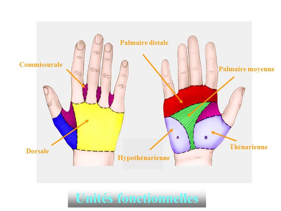 PLAIES NERVEUSES AU NIVEAU DE LA PAUME DE LA MAIN ET DES DOIGTS * Paume de la main: Section d un nerf sensitif pur : nerfs interdigitaux anesthésie des deux versants de commissure.
