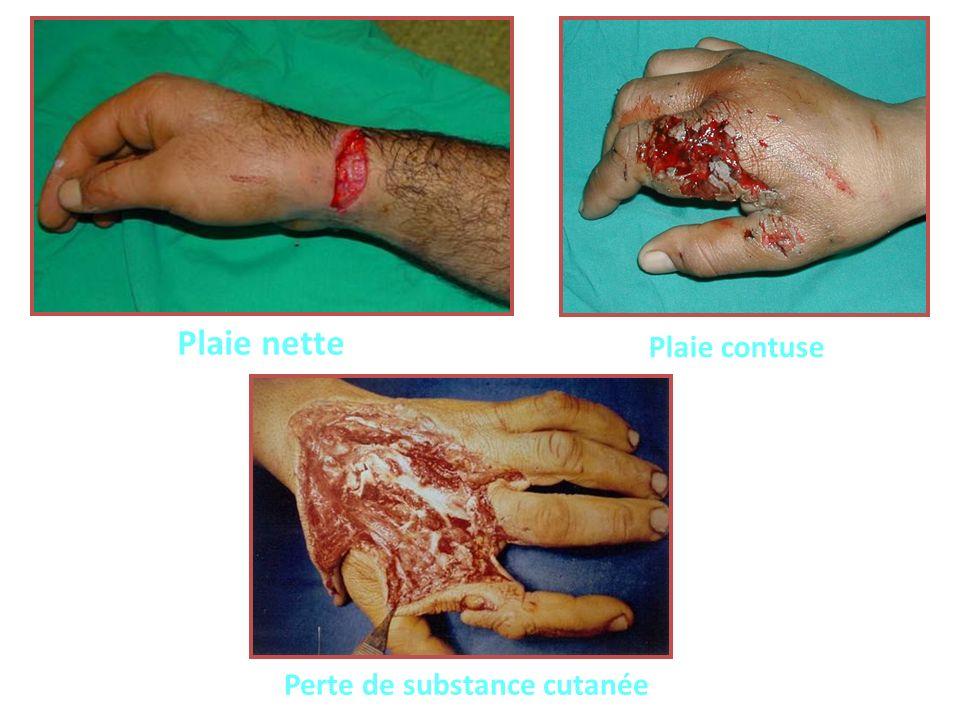 CLASSIFICATION ANATOMO-CHIRURGICALE *Au niveau des articulations métacarpo-phalangiennes : déficit dextension métacarpo-phalangien.