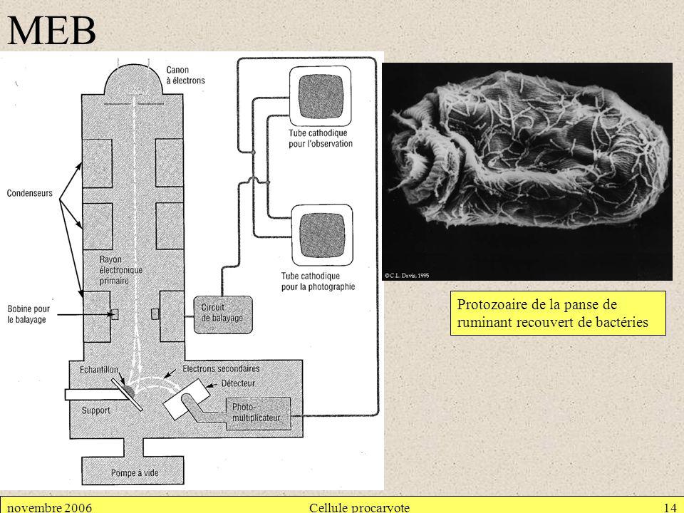 novembre 2006Cellule procaryote14 MEB Protozoaire de la panse de ruminant recouvert de bactéries