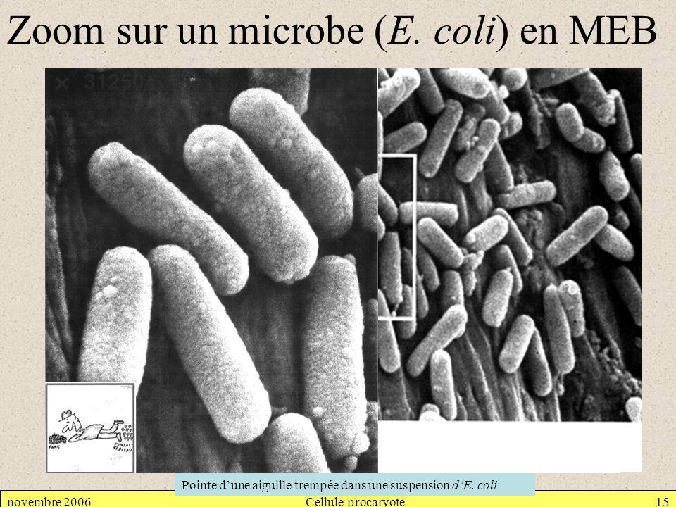 novembre 2006Cellule procaryote15 Zoom sur un microbe (E. coli) en MEB Pointe dune aiguille trempée dans une suspension dE. coli