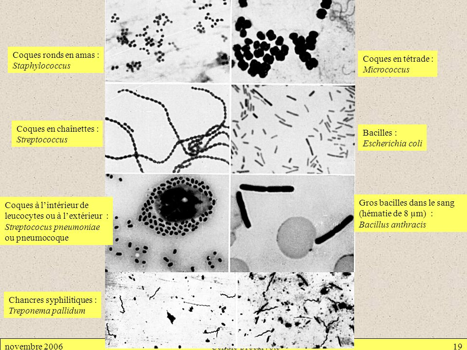 novembre 2006Cellule procaryote19 Coques ronds en amas : Staphylococcus Coques en tétrade : Micrococcus Coques en chaînettes : Streptococcus Bacilles