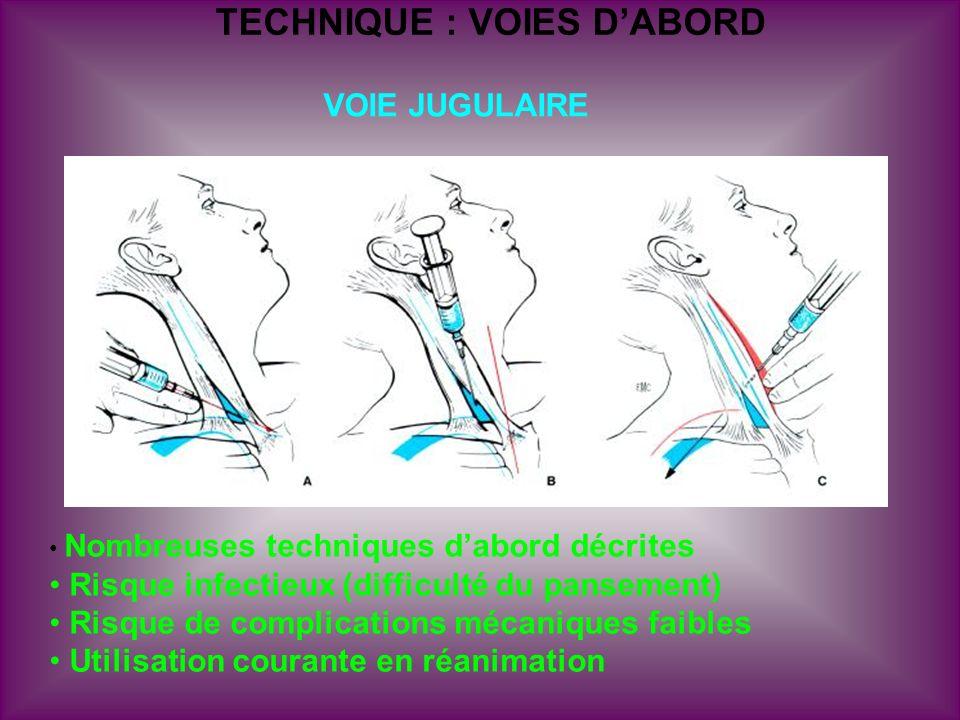 TECHNIQUE : VOIES DABORD VOIE JUGULAIRE Nombreuses techniques dabord décrites Risque infectieux (difficulté du pansement) Risque de complications méca