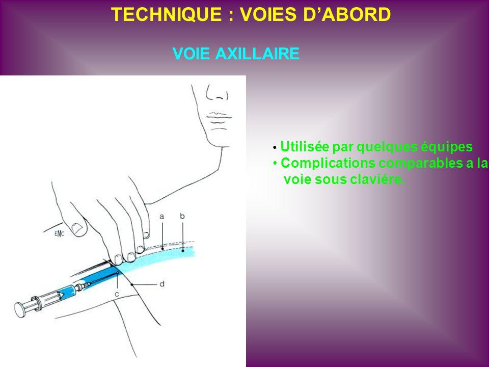TECHNIQUE : VOIES DABORD VOIE AXILLAIRE Utilisée par quelques équipes Complications comparables a la voie sous claviére.