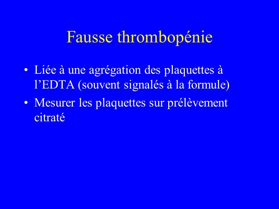 Thrombopénies familiales Bien caractérisées –May Hegglin –Jean Bernard Soulier –Wiscott Aldrich Nombreuses formes famililales….