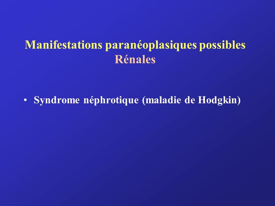 Manifestations paranéoplasiques possibles Rénales Syndrome néphrotique (maladie de Hodgkin)