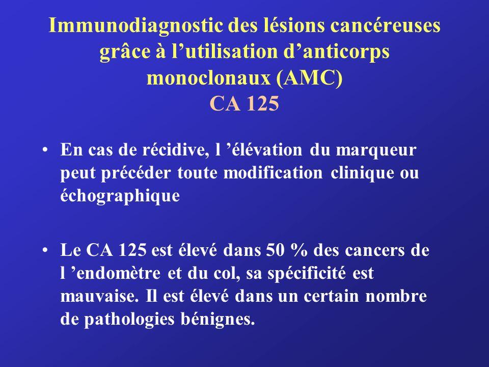 Immunodiagnostic des lésions cancéreuses grâce à lutilisation danticorps monoclonaux (AMC) CA 125 En cas de récidive, l élévation du marqueur peut pré