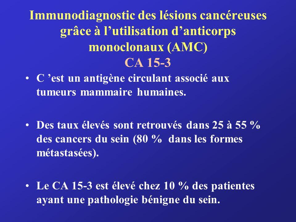Immunodiagnostic des lésions cancéreuses grâce à lutilisation danticorps monoclonaux (AMC) CA 15-3 C est un antigène circulant associé aux tumeurs mam