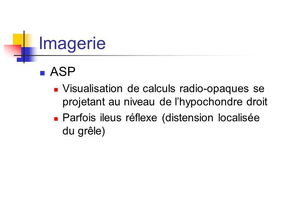 Imagerie ASP Visualisation de calculs radio-opaques se projetant au niveau de lhypochondre droit Parfois ileus réflexe (distension localisée du grêle)