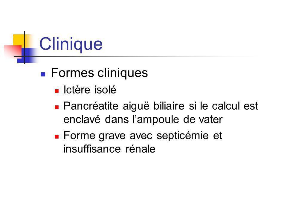 Clinique Formes cliniques Ictère isolé Pancréatite aiguë biliaire si le calcul est enclavé dans lampoule de vater Forme grave avec septicémie et insuf