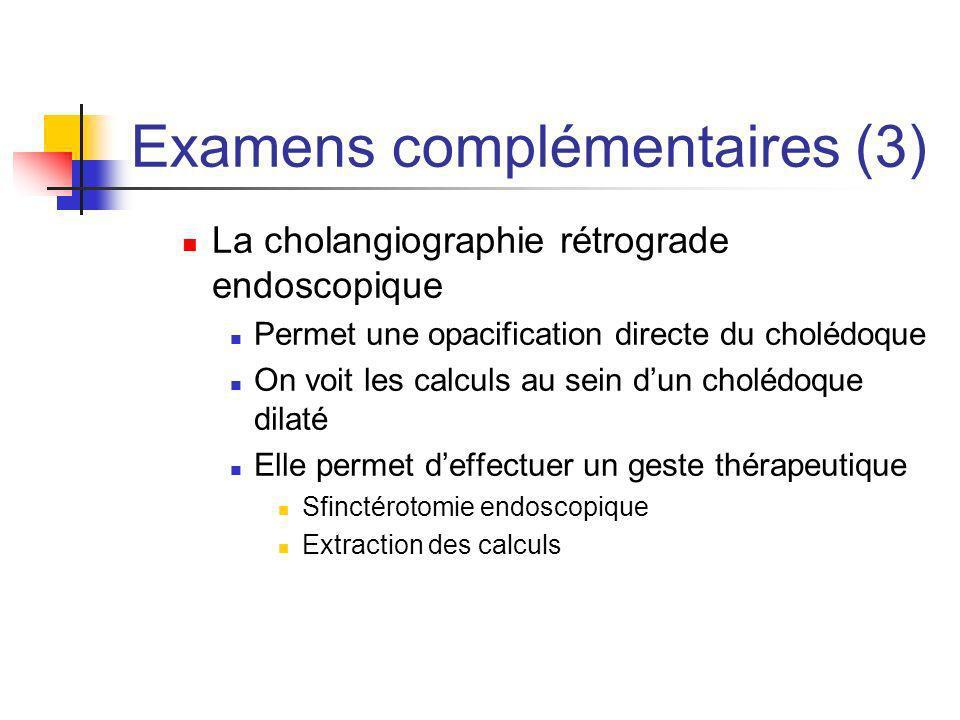 Examens complémentaires (3) La cholangiographie rétrograde endoscopique Permet une opacification directe du cholédoque On voit les calculs au sein dun