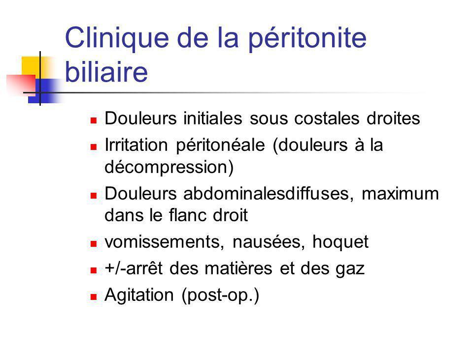 Clinique de la péritonite biliaire Douleurs initiales sous costales droites Irritation péritonéale (douleurs à la décompression) Douleurs abdominalesd