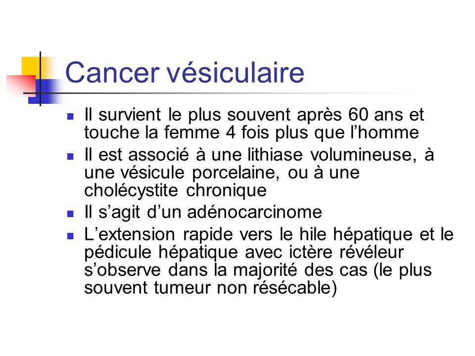 Cancer vésiculaire Il survient le plus souvent après 60 ans et touche la femme 4 fois plus que lhomme Il est associé à une lithiase volumineuse, à une
