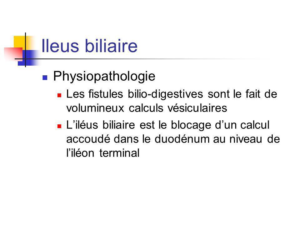 Ileus biliaire Physiopathologie Les fistules bilio-digestives sont le fait de volumineux calculs vésiculaires Liléus biliaire est le blocage dun calcu