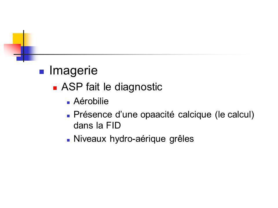 Imagerie ASP fait le diagnostic Aérobilie Présence dune opaacité calcique (le calcul) dans la FID Niveaux hydro-aérique grêles