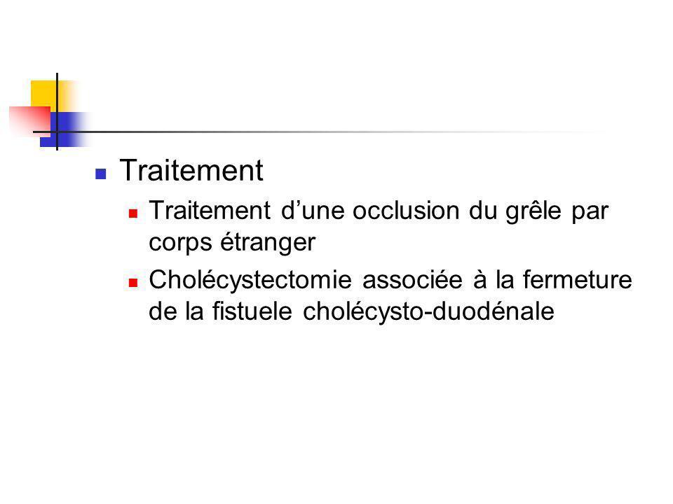 Traitement Traitement dune occlusion du grêle par corps étranger Cholécystectomie associée à la fermeture de la fistuele cholécysto-duodénale