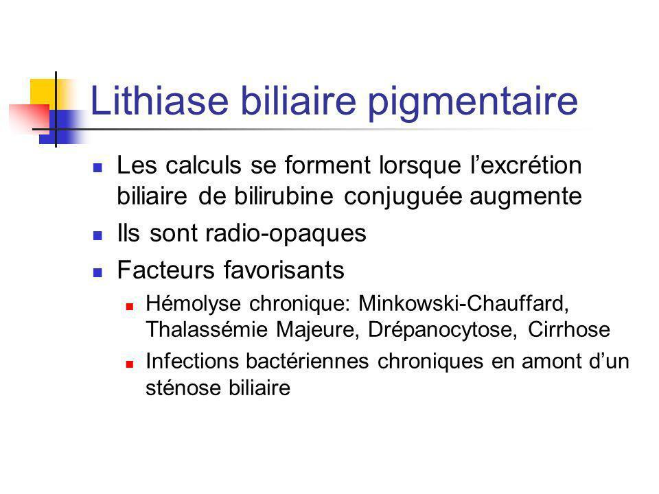 Lithiase biliaire pigmentaire Les calculs se forment lorsque lexcrétion biliaire de bilirubine conjuguée augmente Ils sont radio-opaques Facteurs favo