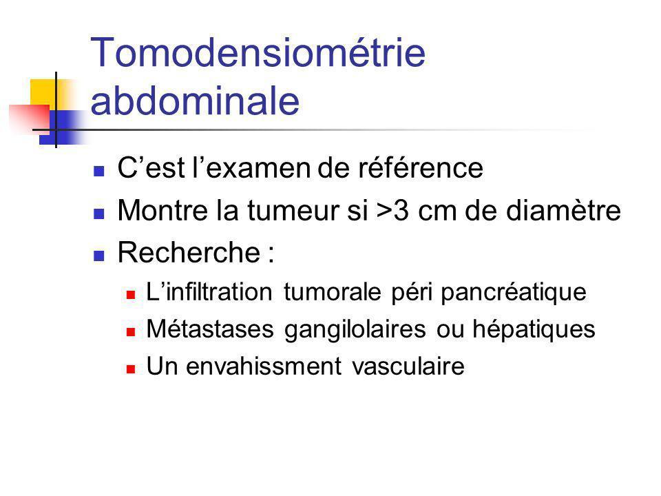 Tomodensiométrie abdominale Cest lexamen de référence Montre la tumeur si >3 cm de diamètre Recherche : Linfiltration tumorale péri pancréatique Métas