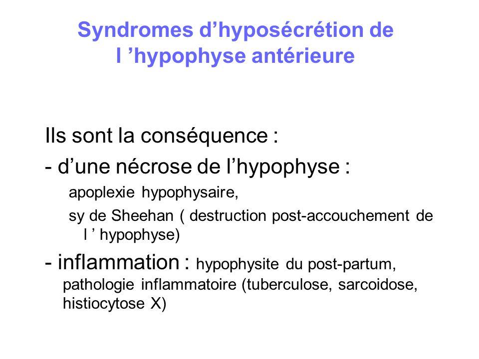 Syndromes dhyposécrétion de l hypophyse antérieure Ils sont la conséquence : - dune nécrose de lhypophyse : apoplexie hypophysaire, sy de Sheehan ( de