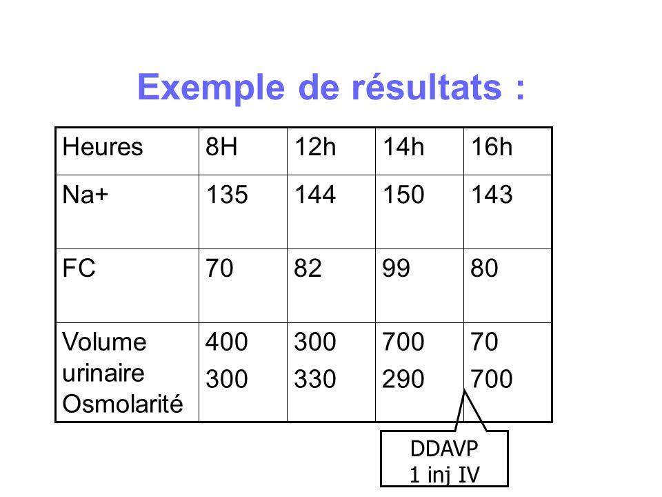 Exemple de résultats : 70 700 290 300 330 400 300 Volume urinaire Osmolarité 80998270FC 143150144135Na+ 16h14h12h8HHeures DDAVP 1 inj IV