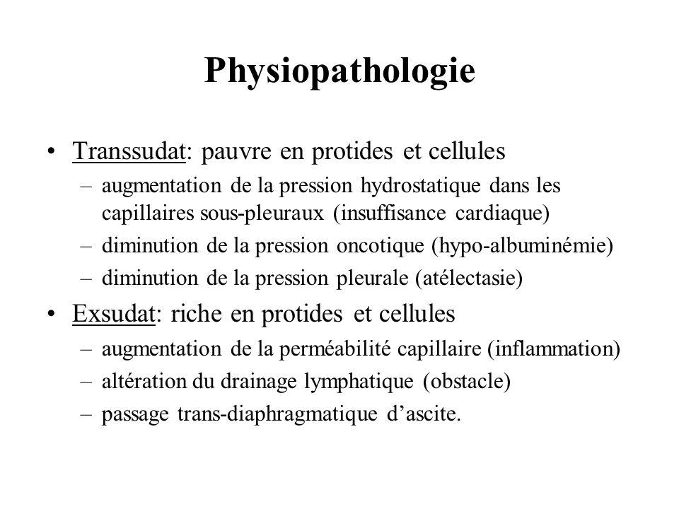 Physiopathologie Transsudat: pauvre en protides et cellules –augmentation de la pression hydrostatique dans les capillaires sous-pleuraux (insuffisanc