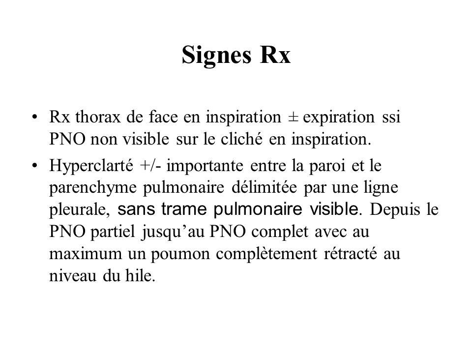 Signes Rx Rx thorax de face en inspiration ± expiration ssi PNO non visible sur le cliché en inspiration. Hyperclarté +/- importante entre la paroi et