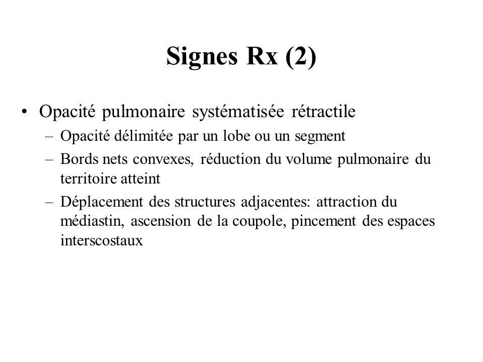 Signes Rx (2) Opacité pulmonaire systématisée rétractile –Opacité délimitée par un lobe ou un segment –Bords nets convexes, réduction du volume pulmon