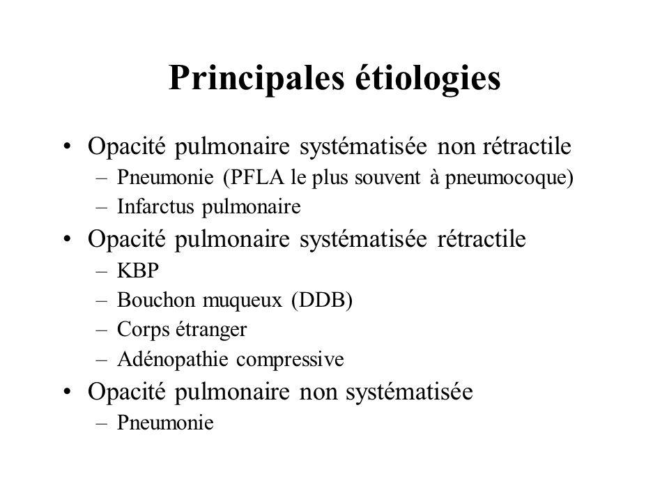 Principales étiologies Opacité pulmonaire systématisée non rétractile –Pneumonie (PFLA le plus souvent à pneumocoque) –Infarctus pulmonaire Opacité pu