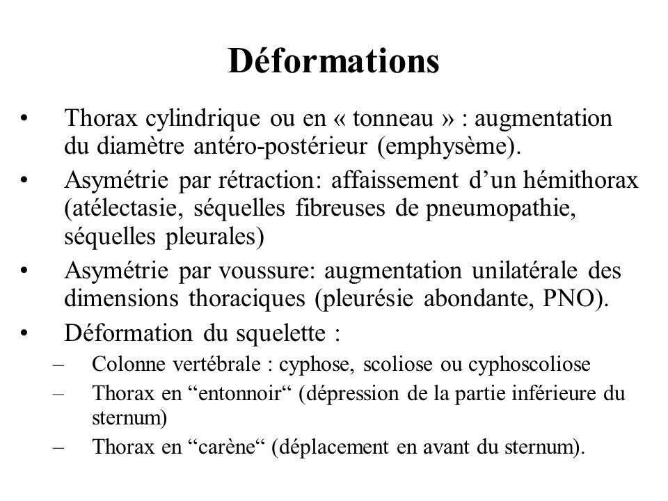 Thorax cylindrique ou en « tonneau » : augmentation du diamètre antéro-postérieur (emphysème). Asymétrie par rétraction: affaissement dun hémithorax (
