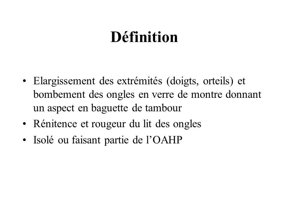 Définition Elargissement des extrémités (doigts, orteils) et bombement des ongles en verre de montre donnant un aspect en baguette de tambour Rénitenc